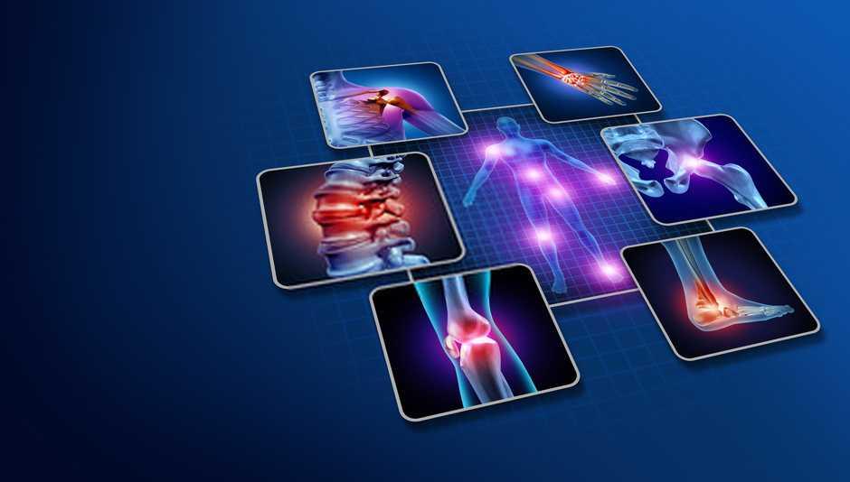 artrosi vs artrite reumatoide
