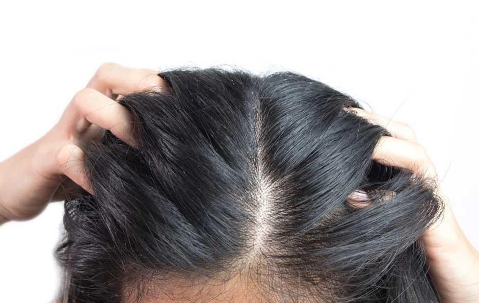 dermatite seborroica sintomi