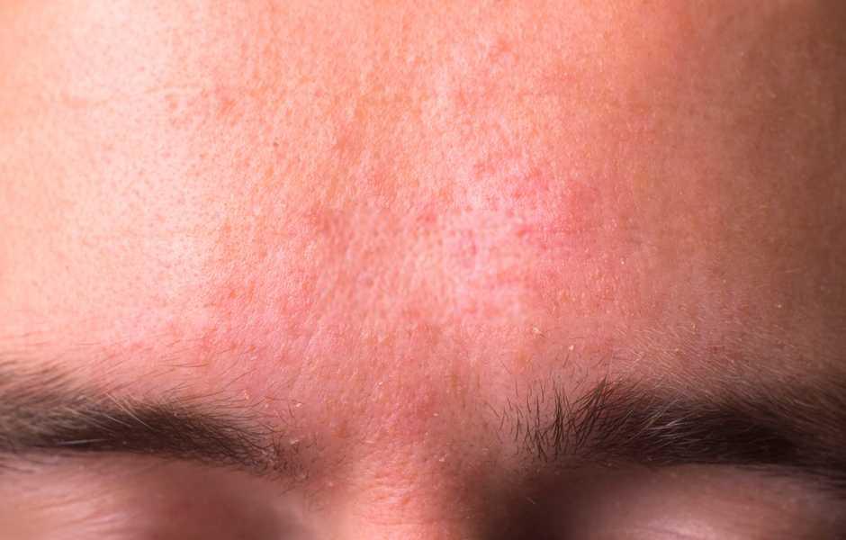 dermatite seborroica viso rimedi naturali