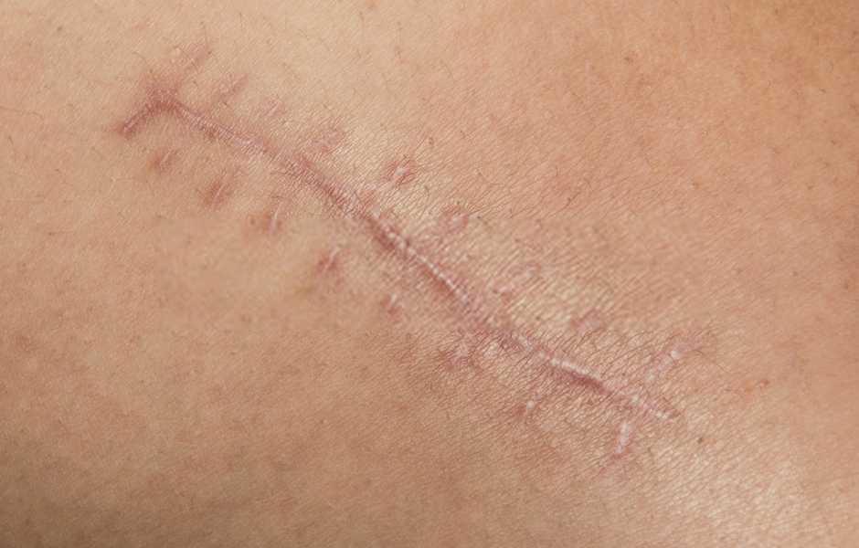 cicatrici chirurgiche