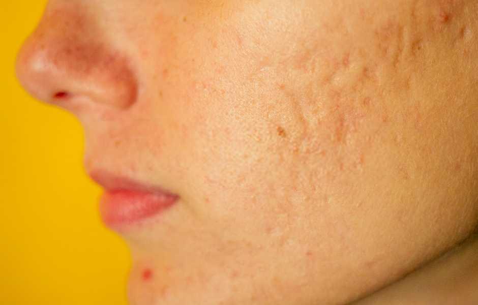 eliminare cicatrici acne