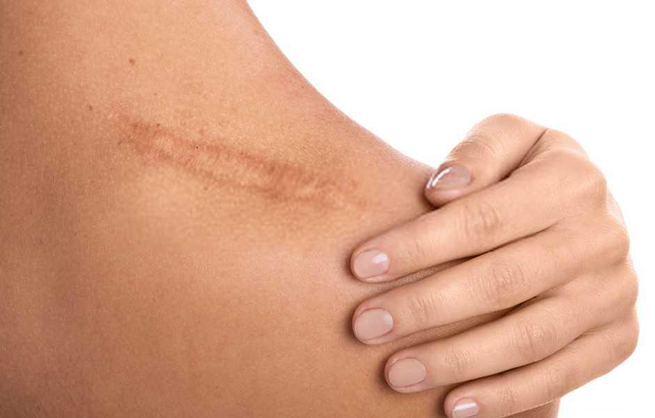 rimedi naturali cicatrici