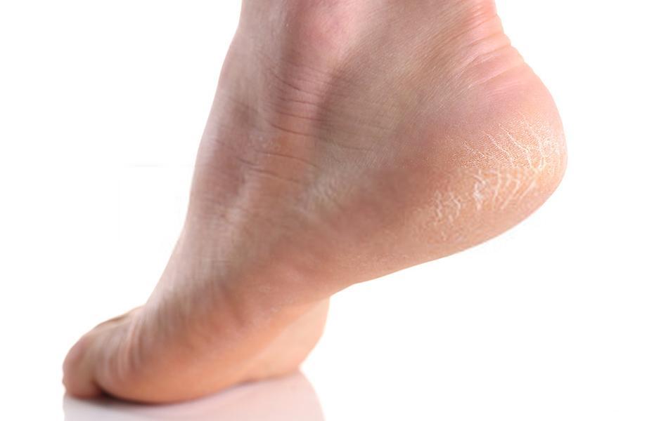 ragadi piedi rimedi